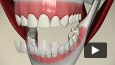 Cosmetic Problems - Home Whitening