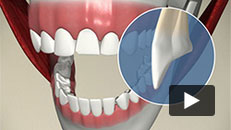 Cosmetic Problems - Veneer (cracked tooth)