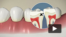 Tooth Decay - Introduction
