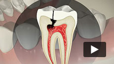 Tooth Decay - Root canal (direct post and core)