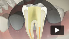 Tooth Decay - Root canal (indirect post and core)