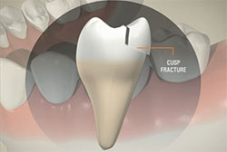 Cusp Fractures