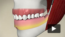 Missing Teeth - Implant (bar-supported denture)