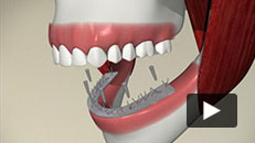 Missing Teeth - Implant (supported denture)