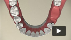 Missing Teeth - Removable Partial Denture (RPD)