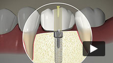 Missing Tooth - Implant (screw-fixed crown)