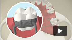 Appliances - Maintaining Space for Permanent Teeth
