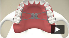 Appliances - Widening the Upper Jaw