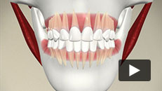 Orthodontic Problems - Ideal Alignment and Occlusion