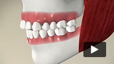 Orthodontic Problems - Overjet