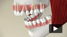 Overview of Orthodontic Problems