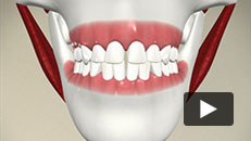 Orthodontic Problems - Spaced Teeth
