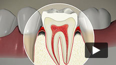 Periodontal Disease - About Periodontal Disease